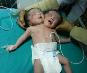 Родился младенец с двумя головами